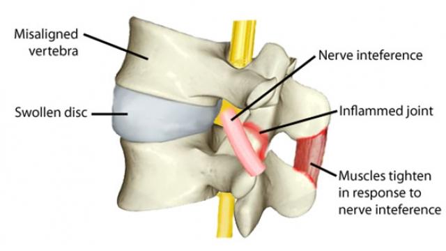 Quiropractico Quiropraxia subluxacion